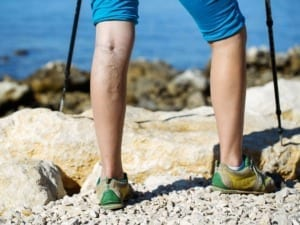 Varicose Veins Appearing In Hiker's Legs
