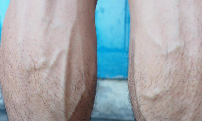 Bulging Leg Veins