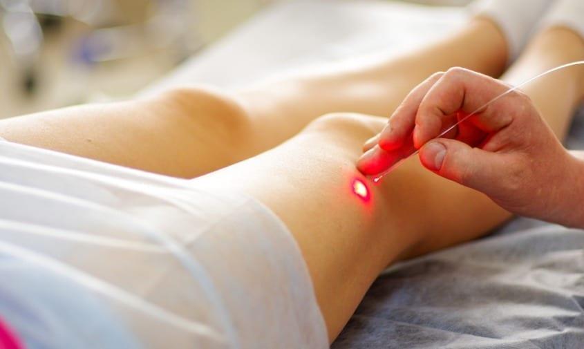 Treatments for Varicose Vein Pain