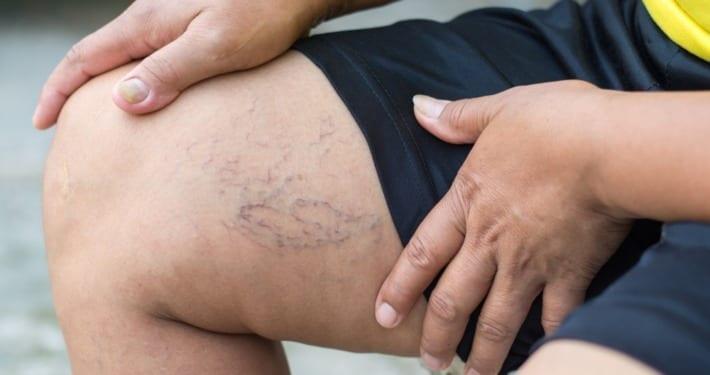 Understanding Leg Vein Problems