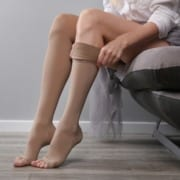 Can Home Remedies Help Manage Unsightly Veins