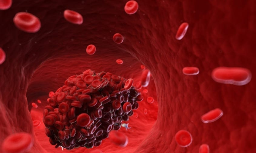 What Does a Blood Clot Feel Like?