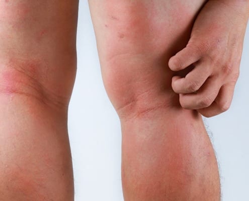 Treating Vein Diseases and Skin Conditions