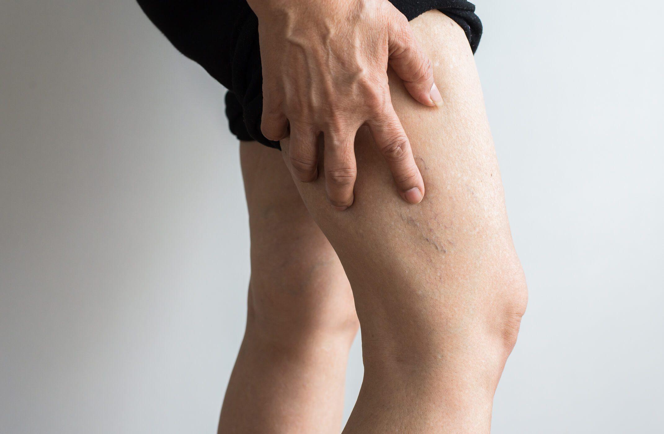 Deep Vein Thrombosis Symptoms | Gilvydis Vein Clinic