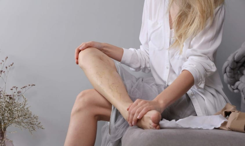 woman holding ankle showing spider veins in calf