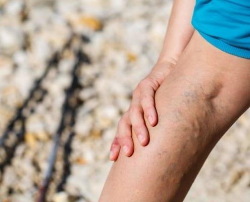 treating bulging veins