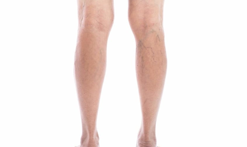 back of legs showing spider veins