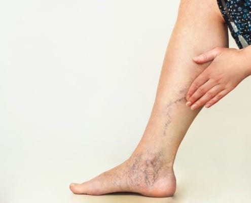 Varicose vein treatment options