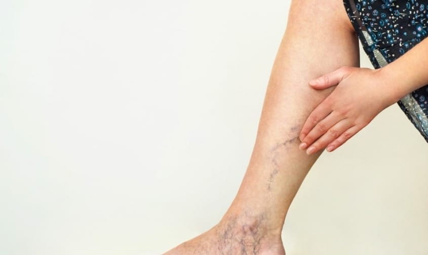 Varicose vein treatment options