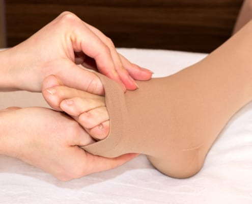 Compression sock on ankle and foot to improve circulation
