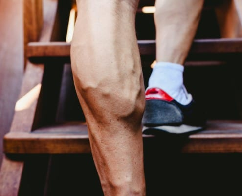 Healthy Legs showing veins walking up stairs