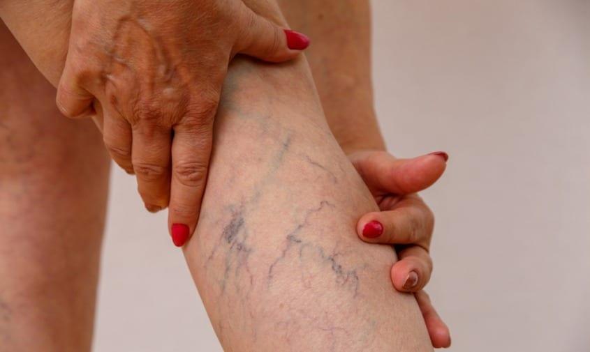 Women holding leg showing spider veins