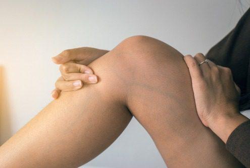 blue veins in leg