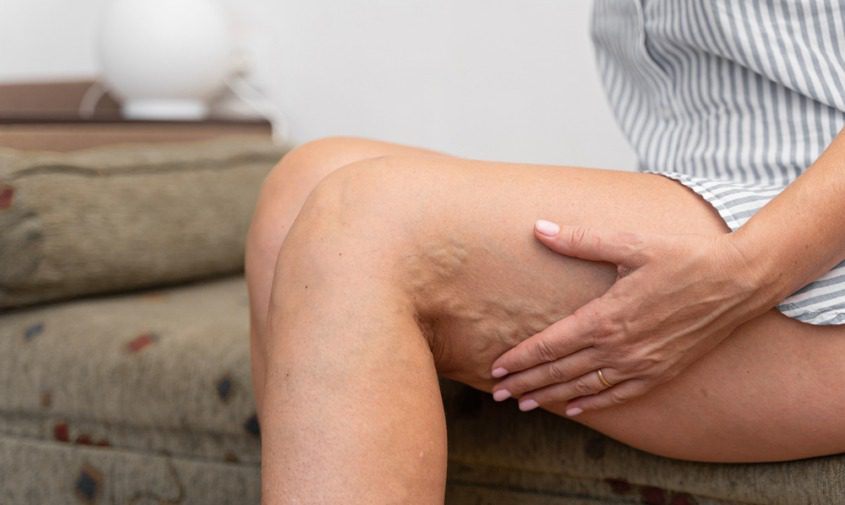 woman sitting at home on couch holding leg showing varicose veins