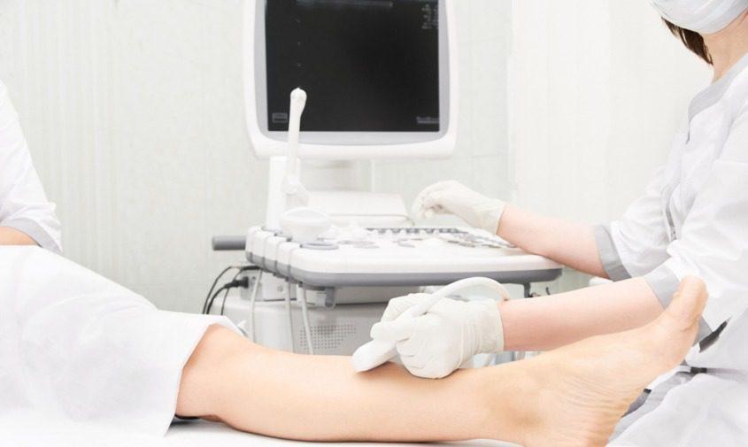 doctor performing vein mapping on patient before EVLA procedure